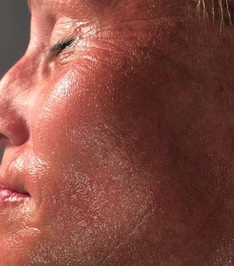Face-After CryoToning Face