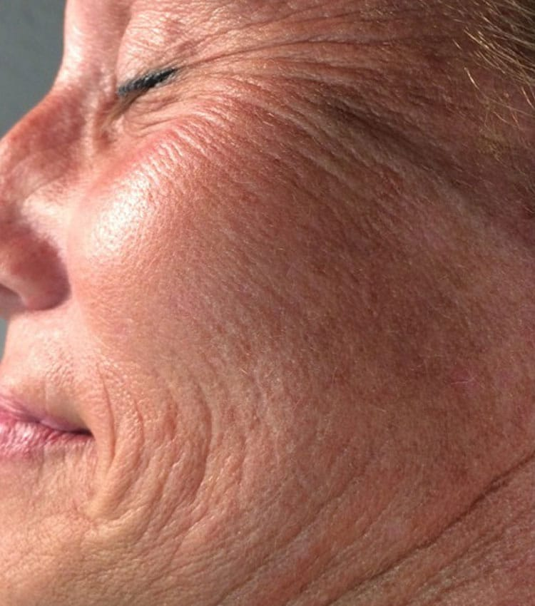 Face-Before CryoToning Face.